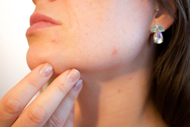 化粧品による肌トラブル