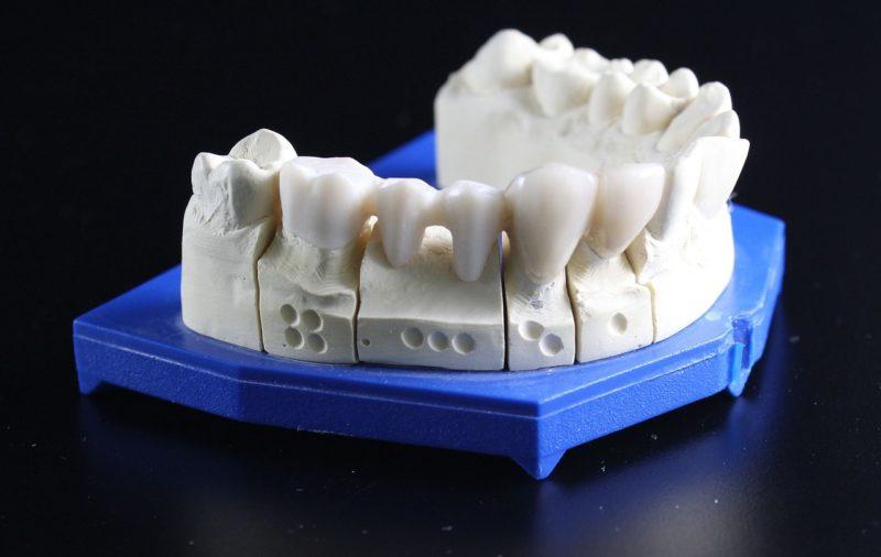 入れ歯感謝デー/歯科技工の日